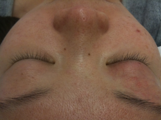Lashoutbeauty Eyelash Extension Before 3 Lash Out Beauty